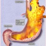 Brandend Maagzuur – Oorzaken en Oplossingen